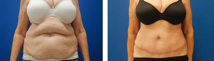 Before and After Tummy Tuck Tennessee