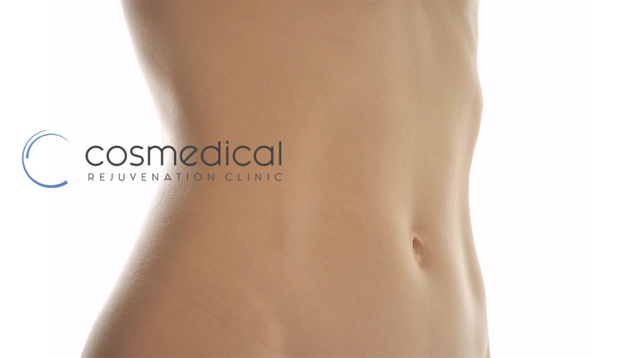 Difference Between a Belt Lipectomy and an Extended Tummy Tuck?