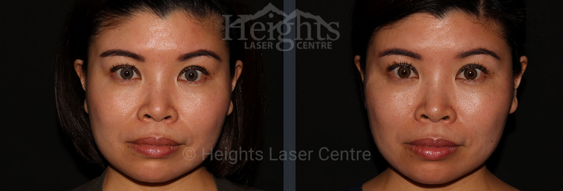 Jawline Slimming with Botox