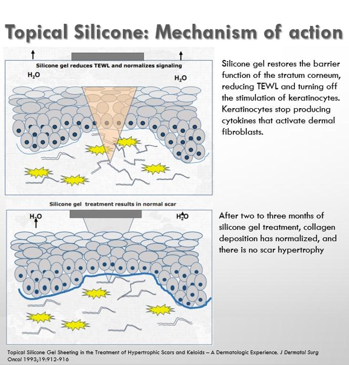 Silicone scar gel diagram toronto