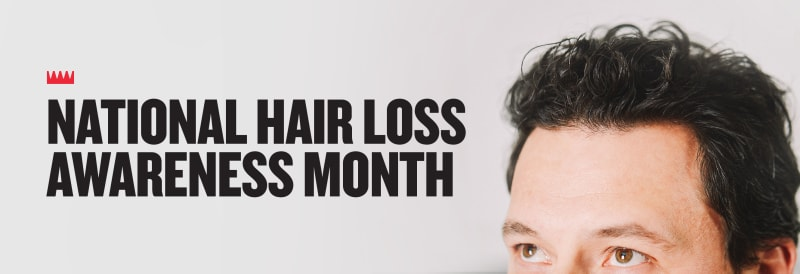 Image result for national hair loss association