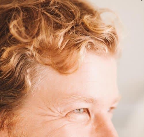 Hair loss genetics answer
