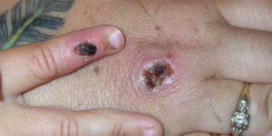 What is monkeypox? Two cases of rare viral infection found in the U.K.