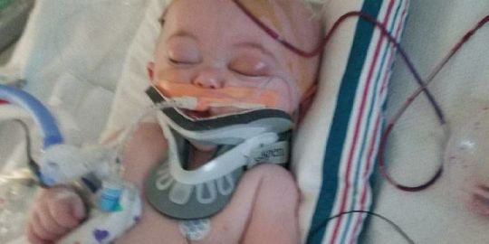 This mom's baby suffered brain damage after falling off a bed, and now she's warning parents