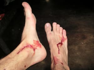 Blutige Füße