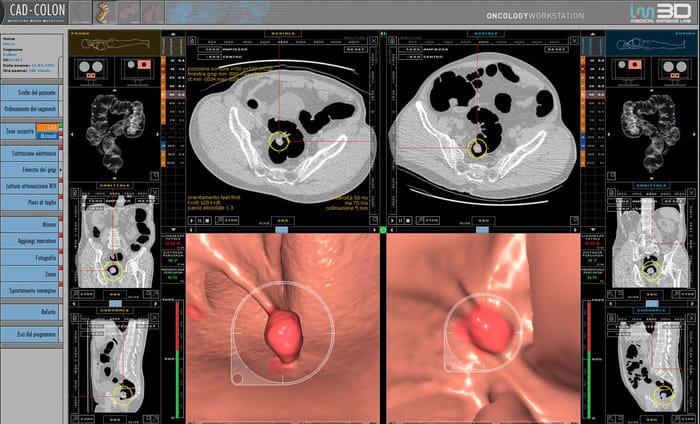 Tumori, IA rileva lesioni sospette durante la colonscopia