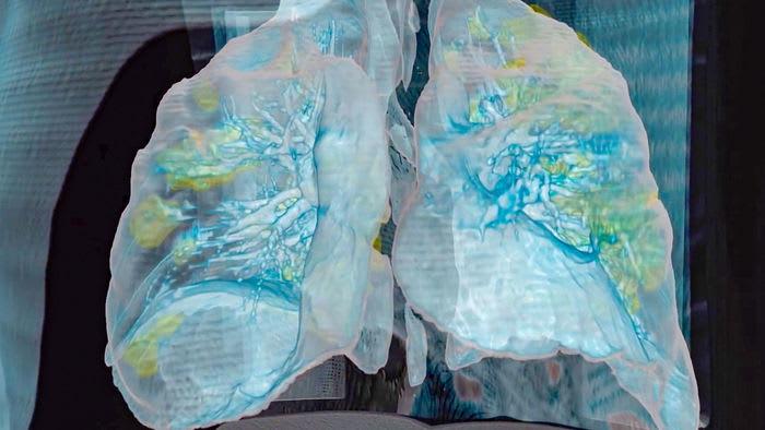 Alveoli su chip per studiare le malattie dei polmoni