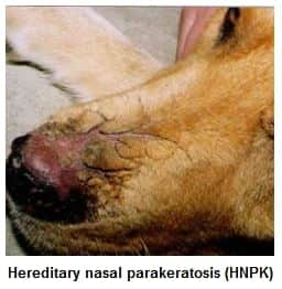 Hereditary nasal parakeratosis HNPK