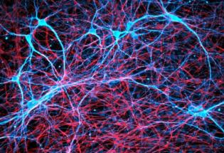 邪恶的能力:肿瘤细胞或通过劫持大脑神经回路促进自身生长