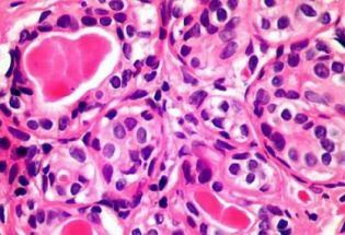 """英国发现新免疫细胞疗法有望""""通杀""""癌症"""
