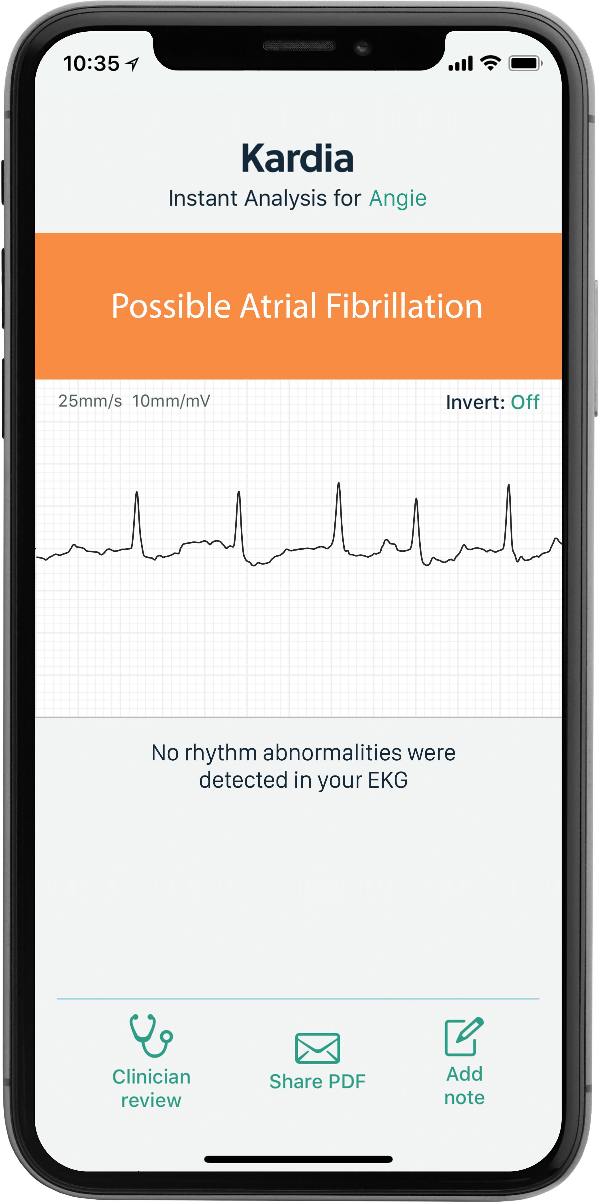 AliveCor KardiaMobile 6L Personal EKG device