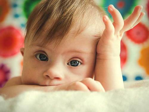Yeni Doğan Bebekte Down Sendromu Nasıl Anlaşılır