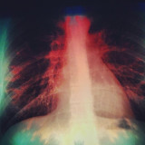 #rib #cage #sky #lung #nerve #blood #heart #chest #me #self #xray