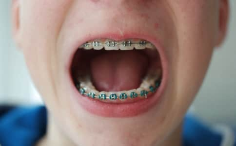Beauty braces