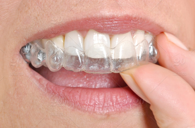 stock photo, mouth, smile, tooth, dentist, invisible, braces, orthodontist, dentistry, invisalign, orthodontic