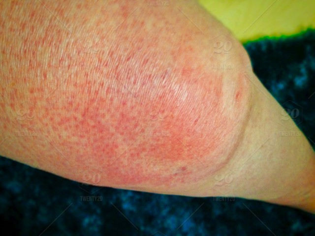 Allergies (Rash & Swollen Knee in pic) $ HIVES - is an itchy