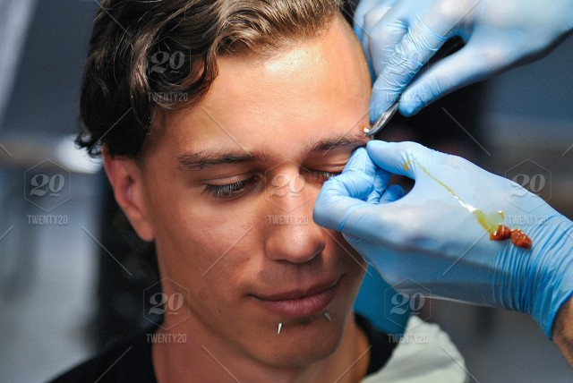 Young Adult Hand Face Man Operation Eyebrow Piercing