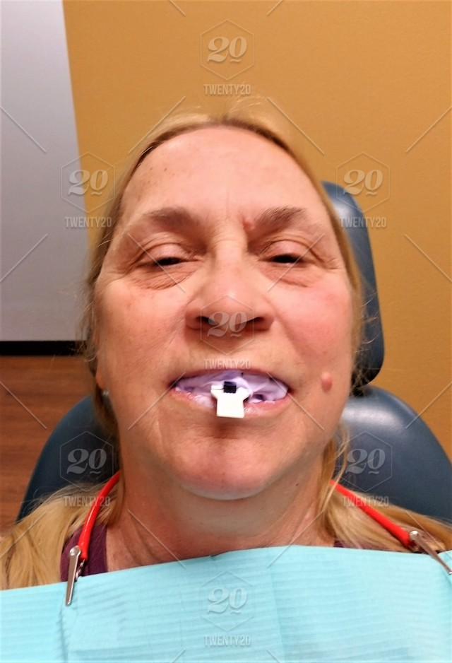 Healthcare and Medicine! A dental patient sits with a substance and