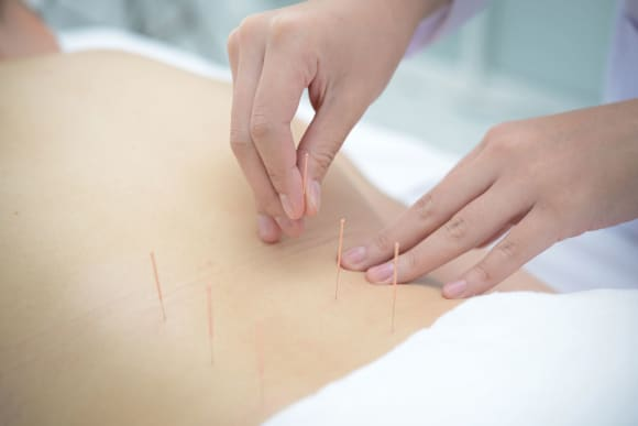 How to Choose an Acupuncturist on the Gold Coast