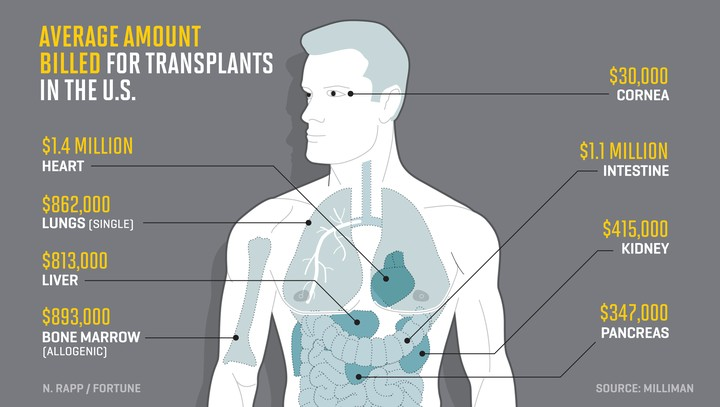 Average amount billed for transplants in the US.