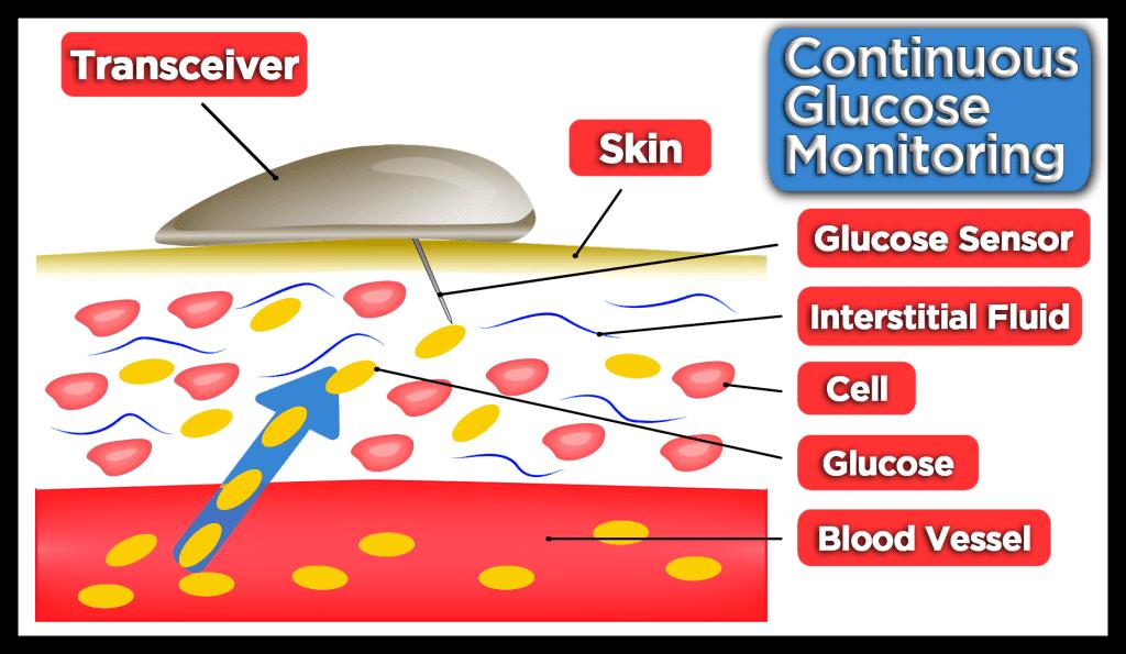 CGM Graphic