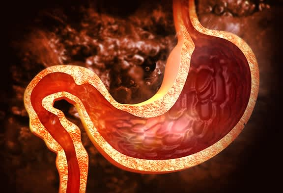 gastroparesis-and-diabetes
