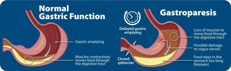 gastroparesis-impact-on-digestion-diagram