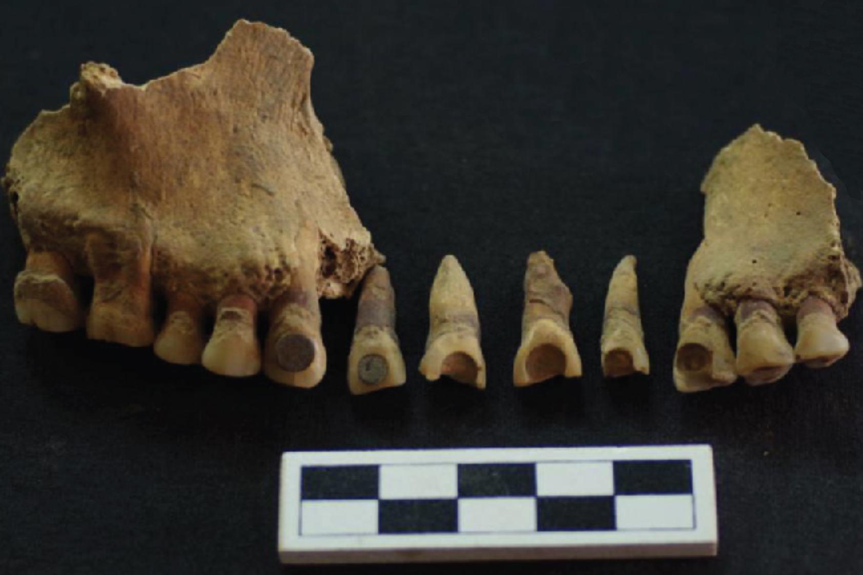 El enigma de las incrustaciones dentales mayas: cuando la Química  ayuda a la Arqueología