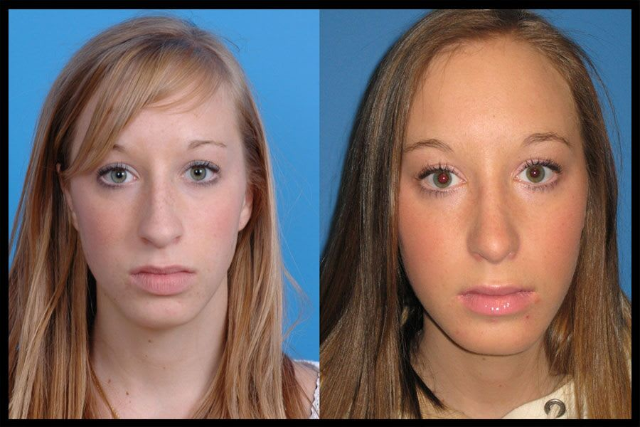 Transformations-Before-and-After-Rhinoplasty-Front-1b-900