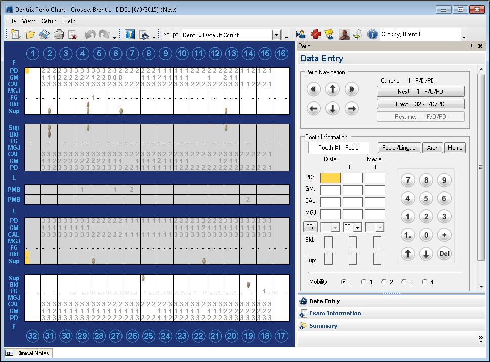 Dentrix Perio Chart