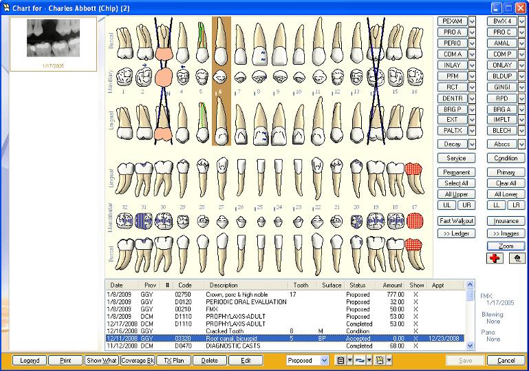 Eaglesoft Chart