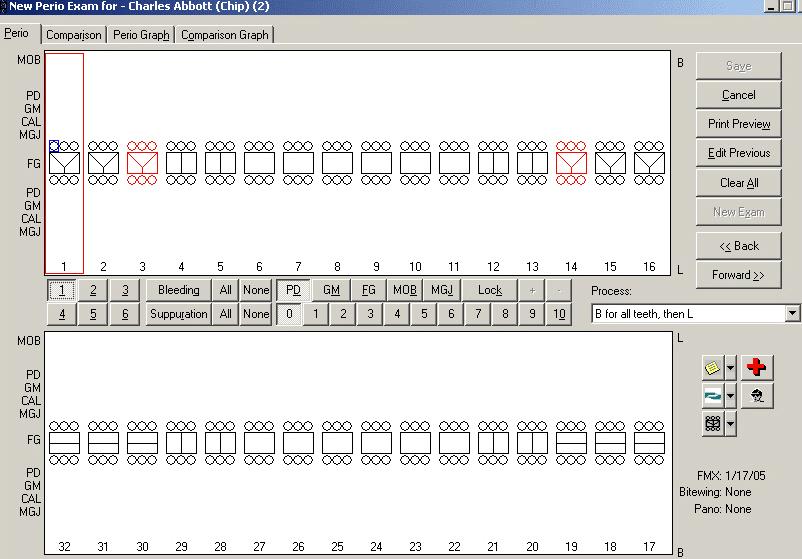 Eaglesoft Perio Chart