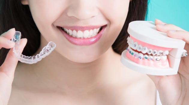 4 Ways to Save on Braces in Singapore