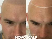 SCALP TATTOOS (SMP) ARE THE FASTEST GROWING SOLUTION THE HAIR LOSS INDUSTRY HAS EVER SEEN! In A World Of Trending Fashion, Foods And Fads There Is Also An Exchange Of Ideas, New Innovations And Global Communication Bringing Changes That Are Here To Stay.
