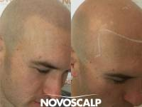 ANOTHER NOVOSCALP STORY! These Are The Guys Making The Decision That Shapes A Change For The Better In Their Lives. We Are Masters At The Art Of Concealing Baldness. We Are Waiting To Make A Change For You Or Anyone You Know Who Would Benefit By Looking T