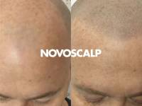 MANAGING HAIR LOSS WITH TATTOOED HAIR FOLLICLE REPLICATIONS!! GET THE LOOK WITH NOVOSCALP'S UNIQUE SCALP MICROPIGMENTATION TREATMENT. Immediate, Permanent, Affordable Solutions Without The Stigma Of Hair Transplants, Systems Or Concealers.
