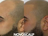 10 YEARS WITH A HAT ON EVERY WAKING HOUR. THIS GUY HAS BROKEN FREE WITH SMP! Scalp Micropigmentation Is A Solution To Hair Loss. It Is An Alternative To Hair Transplants And Other Wigs, Concealers And Products With The Unique Difference In A Guaranteed Re