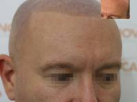 SOFT AND SUBTLE - NATURAL LOOKING HAIR LOSS SOLUTIONS! Scalp Micropigmentation Is A Permanent Cosmetic Tattoo And An Affordable Solution For Hair Loss. This Guy Got A Nice Hairline And Mentioned How It Had Switched Up His Confidence And Changed His Life S