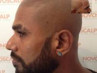 SCALP MICROPIGMENTATION (SMP) IS A HAIR LOSS SOLUTION THAT IS GUARANTEED! Unlike The Alternatives For Balding Men Such As Hair Transplants, Hair Systems (wigs), Finasteride, Propecia, Caboki, Toppik Or Other Remedies, SMP Results Are Guaranteed. SMP Is Af