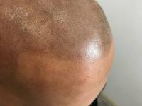 THE ART OF FOLLICLE APPEARANCE REPLICATION! Super Technical Sounding Term For The Scalp Tattoo Work We Do At Novoscalp Clinic We Conceal Balding In Males And Females And Make Way For The Enhancements That Follow Without The Burden, Maintenance Or Inhibiti