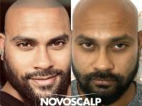 THIS IS THE NEW REVOLUTION IN HAIR LOSS Solutions For The Modern Age Man. Check Out The Results We Are Achieving ...and The Lives We Are Changing ... If You Have A Friend Or Relative Suffering Hair Loss Please Tell Them About This Solution And Ask Them To