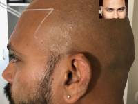 WANT TO CONCEAL BALDING? SCALP MICROPIGMENTATION IS THE ANSWER.. Guys Like This Are Walking Out Of Our Clinic Every Week With A New Lease On Life. Never Appear Bald Again. Look Younger And Sharper. Walk Taller. If You Are Balding, It's A No Brainer. Rea