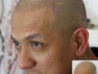 CONFIDENCE IS ALL ON YOUR HEAD! Scalp Micropigmentation (Scalp Tattoo). It's Here. It's Safe. It's An Affordable Way To No Longer Have A Balding Appearance If You Can Commit To A Closely Shaved Look. Novoscalp Clinic Scalp Aesthetics Sydney Is A Lea