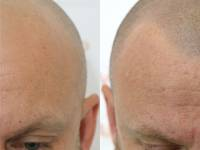 NATURAL UNDERSTATED CONCEALMENT! That Is The Effect Of A Hair Tattoo On Male Pattern Balding. This Client Was Over The Hair System And All The Maintenance And Anxieties That Go With That And Is Now Free Of All Of That And Ready To Begin A New Chapter.