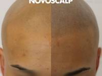 NATURAL LOOKING SMP RESULTS. The Change Is Waiting For Anyone With Hair Loss Looking To Rid Themselves Of Associated Anxieties ...and Look Sharp! Free Consulttaions - Call (02) 9199 2755