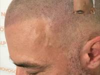 ANOTHER DAY AT WORK - ANOTHER LIFE TRANSFORMED. A Client Suffering Alopecia Benefits From A Scalp Micropigmentation Treatment At Novoscalp Clinic In Sydney. As SMP Technicians We Are Rewarded For Our Time, But This Is Why We Love What We Do: