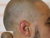 SCALP MICROPIGMENTATION, SMP, SCALP TATTOO, HAIR TATTOO. Many Terms - One Thing ...IMMEDIATE NATURAL LOOKING RESULTS!This Image Shows The Artistic Application Of Smp As A Hair Loss Treatment And The Immediate Result After Just One Session. Novoscalp Clini