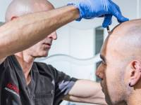 HAIR TATTOOS BY SCALP MICROPIGMENTATION TECHNNICIANS ARE CHANGING THE HAIR LOSS GAME. Why? Because They Are A Completely Natural Looking Alternative To Hair Transplants (with No Scarring) At A Fraction Of The Cost. They Are Hassle Free Unlike Hair Systems