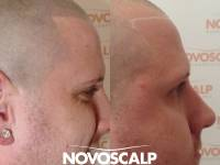 SOFT AND SUBTLE - NATURAL LOOKING HAIR LOSS SOLUTIONS! Scalp Micropigmentation Is A Permanent Cosmetic Tattoo And An Affordable Solution For Hair Loss. This Guy Got A Nice Hairline And Mentioned How It Had Switched Up His Confidence And Changed His Life