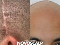 SEAMLESS BLENDS, NATURAL HAIRLINES AND FINESSE OF APPLICATION = FLAWLESS SMP! At Least That's How We See It At Novoscalp Clinic. If Concealing Your Balding Appearance For Good Is Something That Appeals To You Call (02) 9199 2755 To Arrange A FREE Consul
